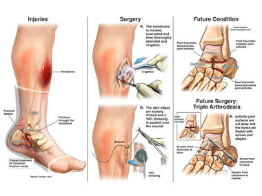 Left Lower Extremity Injuries with Subsequent Conditions