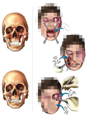 Severe Facial Fractures with Surgical Repairs