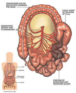 Superior Mesenteric Artery with Lack of Blood Supply to the Intestine