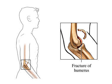 Elbow Fracture - Lower Humerus, Type 2: Male