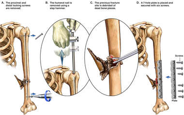 Non-union of the Left Humerus with Additional Surgical Repairs