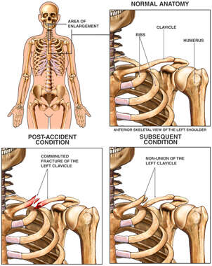 Progression of Clavicular Injury