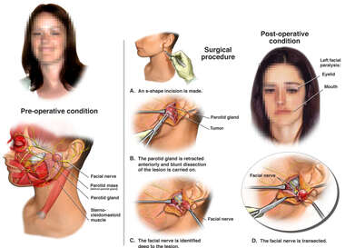 Left Parotid Mass with Surgical Exposure