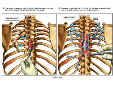 Decompressive Thoracic Laminectomy and Spinal Fusion