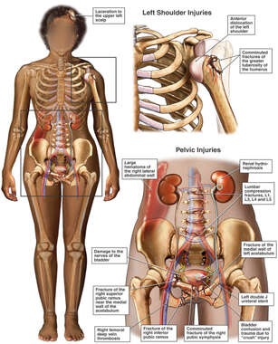 Female Figure with Post-accident Fractures to the Shoulder and Pelvis