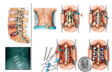 Failed Anterior Lumbar Fusion with Additional Posterior Laminectomy and Fusion