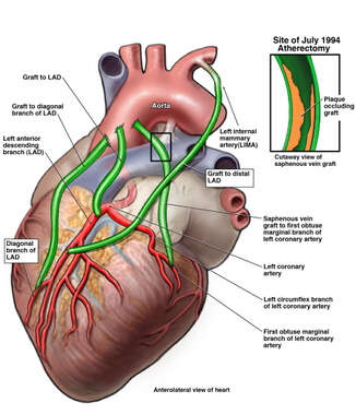 Coronary Grafting with Subsequent Occlusion