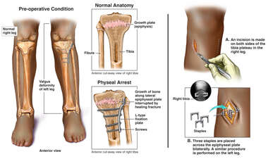 Physeal Arrest of Left Leg with Surgery for Prevention of Leg Length Discrepancy