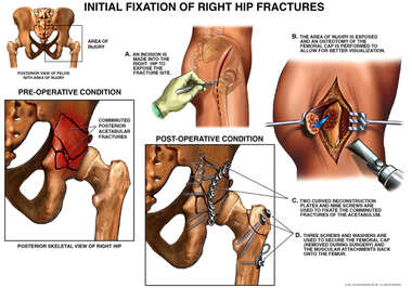 Initial Fixation of Right Hip Fractures