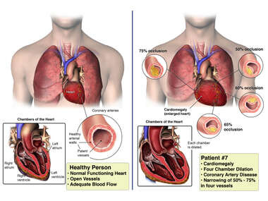 Healthy Heart Anatomy Compared to Patient #7