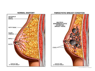 Normal Anatomy vs. Fibrocystic Breast Condition