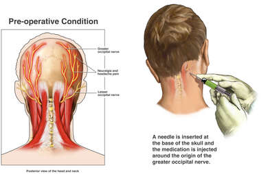 Occipital Nerve Block Injection