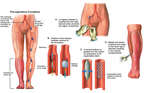Post-operative Vascular Damage and Leg Ischemia with Surgical Repairs