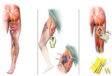 Right Thigh Crush Injury and Sciatic Nerve Damage with Surgical Nerve Graft Repair