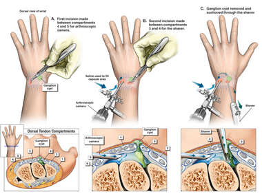 Left Wrist Arthroscopy for Ganglion Cyst in the Dorsal Tendon Compartment