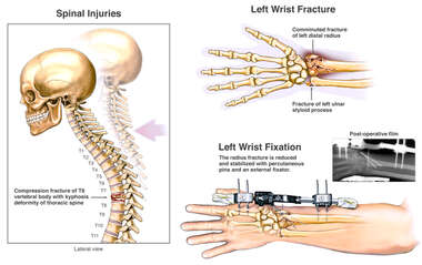Post-accident Thoracic Spine and Wrist Injuries with External Fixation of the Left Wrist
