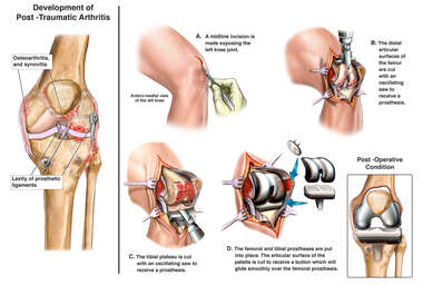 Traumatic Arthritis Total Left Knee Replacement Surgery