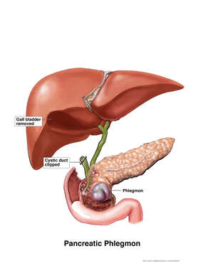 Pancreatic Phlegmon
