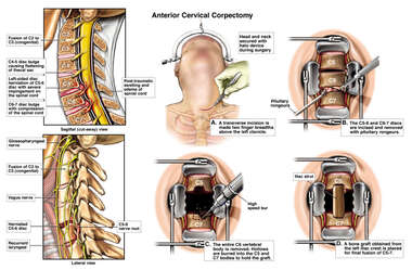 Cervical Spine Injuries with Initial Surgical Repairs