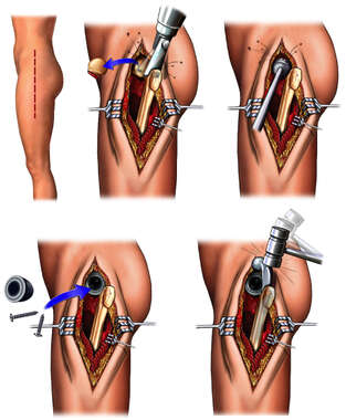 Left Total Hip Replacement Procedure