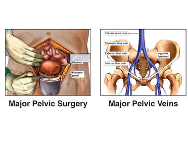 Removal of Prostate Gland