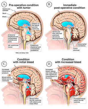 Progression of Bleeding in Brain