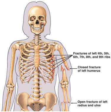 Autopsy Findings of Fatal Fractures of the Ribs, Humerus, Radius and Ulna