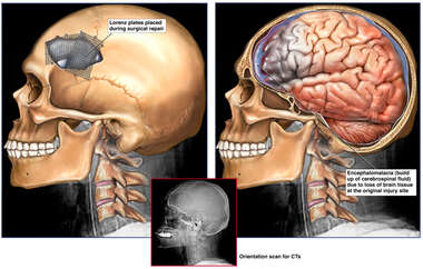 Skull Fracture with resulting Brain Damage