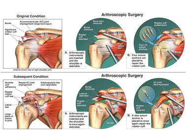 Right Shoulder Injuries with Multiple Surgical Repairs