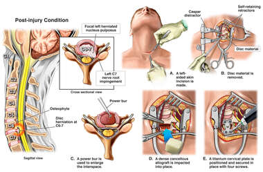 Cervical Disc Herniation with Surgical Discectomy and Fusion