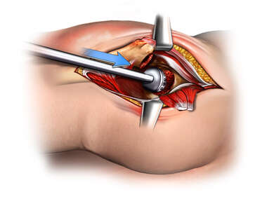 Reaming of Acetabulum During Hip Exposure