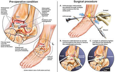 Ankle Ligament Repair