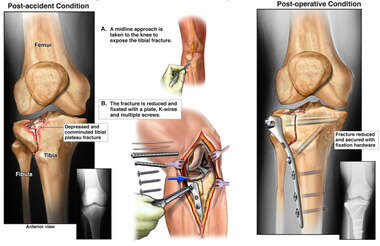Tibial Fracture and Surgical Fixation