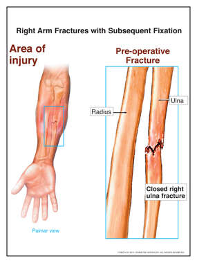 Right Arm Fractures with Subsequent Fixation