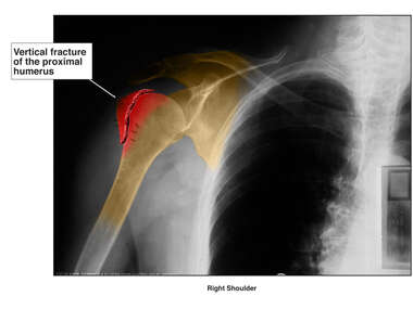 Colorized X-ray of Shoulder Fracture