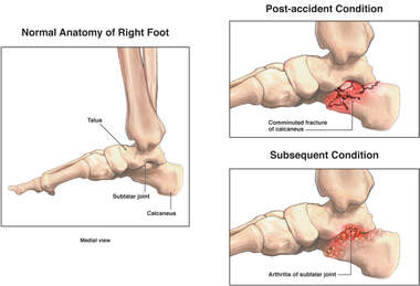 Post-accident Right Foot Calcaneus Fracture with Subsequent Deformity