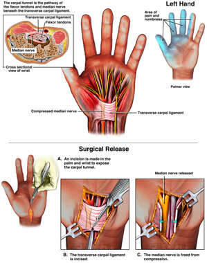 Carpal Tunnel Syndrome and Surgical Release
