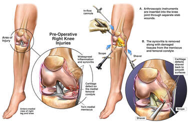 Internal Knee Injuries with Arthroscopic Debridement