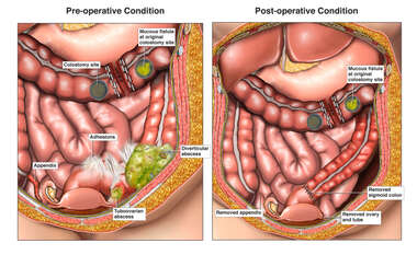 Complicated Diverticulitis with Surgical Resection