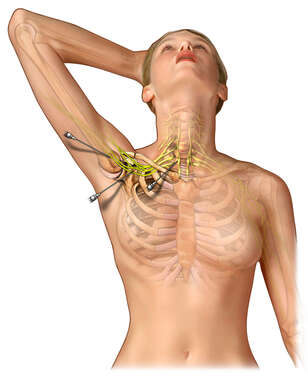 Subclavian Injection Sites in Relation to the Brachial Plexus