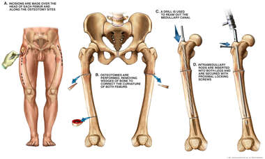 Bilateral Femoral Osteotomies and Insertion of Intramedullary Rods