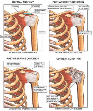 Traumatic Injury to the Shoulder with Capsulitis