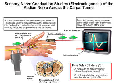 Sensory Nerve Conduction Studies (Electrodiagnosis) of the Media Nerve Across the Carpal Tunnel