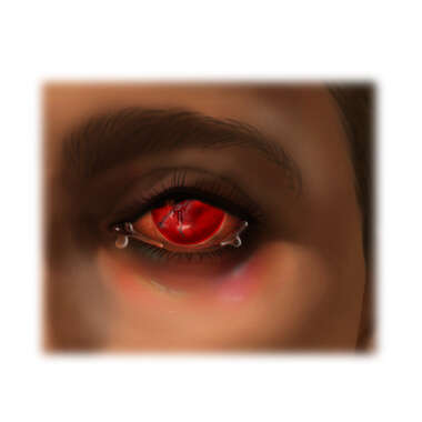 Hemorrhage of the Internal Eye