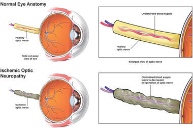 Ischemic Optic Neuropathy
