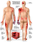 Front and Back Male Figures with Post-accident Electrical Burn Injuries