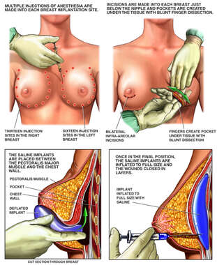 Bilateral Breast Augmentation (Implant) Procedure