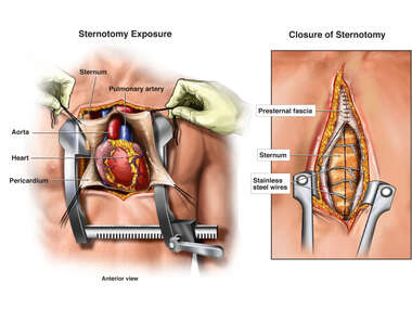 Midline Sternotomy Surgical Exposure and Closure