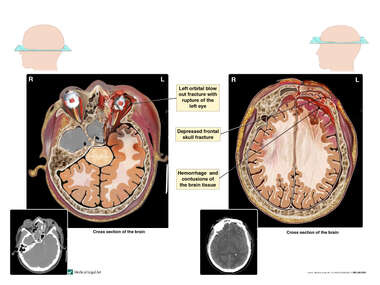 Post-accident CT Scans