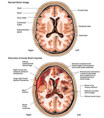 Acute Brain Injuries